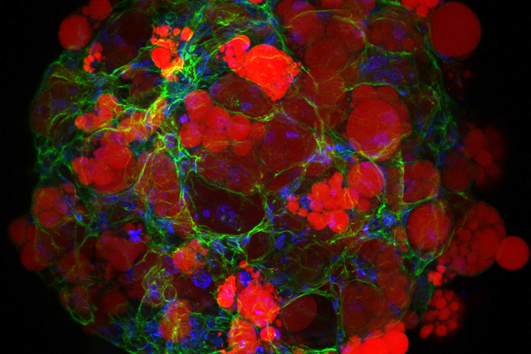 Three-dimensional (3D) adipose tissue organoids for disease modeling. Lipid (red), actin (green), nucleus (blue).